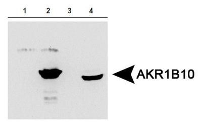 AKR1B10 Antibody (PA5-23017) in Western Blot