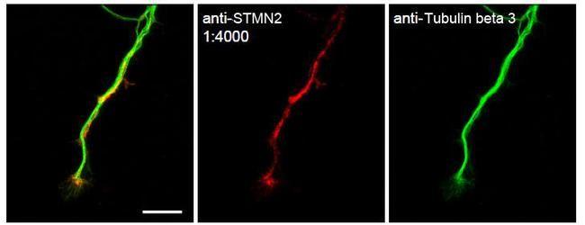 STMN2 Antibody (PA5-23049)