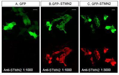 STMN2 Antibody (PA5-23049) in Immunofluorescence