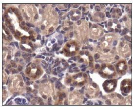 GLUT4 Antibody (PA5-23052) in Immunohistochemistry