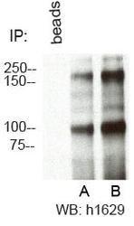 RBBP6 Antibody (PA5-23054) in Western Blot
