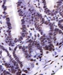 Nkx6.1 Antibody (PA5-23070)
