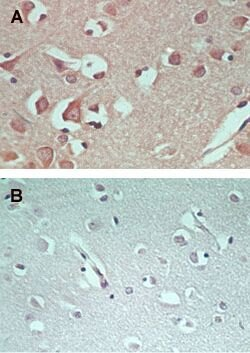 AMPD1 Antibody (PA5-23173)
