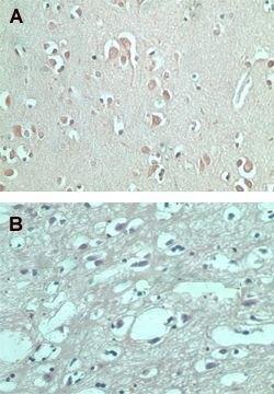 FMNL2 Antibody (PA5-23194) in Immunohistochemistry (Paraffin)