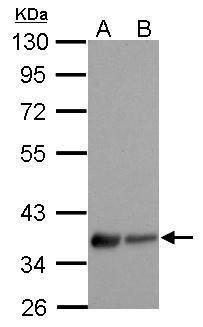 LPAR3 Antibody (PA5-27074) in Western Blot