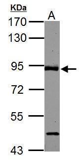 ABR Antibody (PA5-27079) in Western Blot