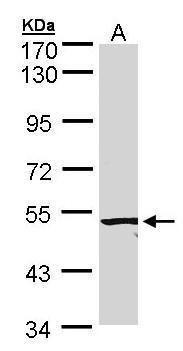 ACVRL1 Antibody (PA5-27081) in Western Blot