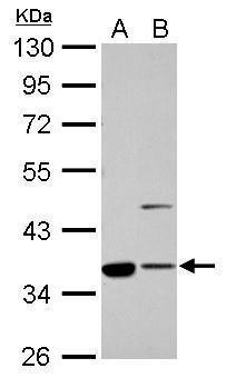 Annexin A2 Antibody (PA5-27085) in Western Blot