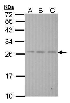 BAK Antibody (PA5-27093) in Western Blot