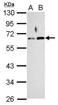 RAD9 Antibody (PA5-27097) in Western Blot