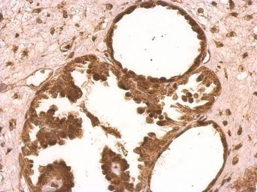 XLF Antibody (PA5-27102) in Immunohistochemistry (Paraffin)