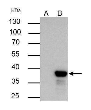 XLF Antibody (PA5-27102) in Immunoprecipitation
