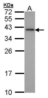 XLF Antibody (PA5-27102) in Western Blot