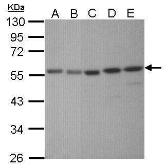 XRCC4 Antibody (PA5-27104) in Western Blot