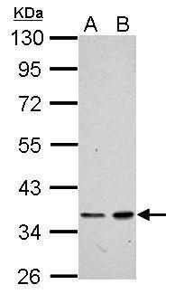 XRCC4 Antibody (PA5-27107) in Western Blot