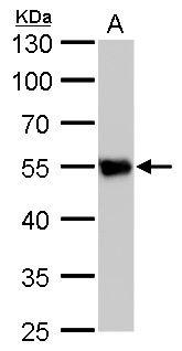 beta Tubulin 2 Antibody (PA5-27108) in Western Blot
