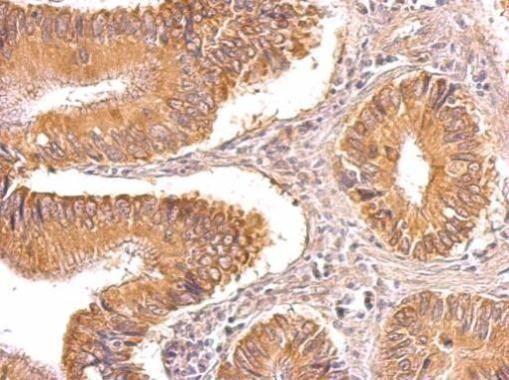 TIP30 Antibody (PA5-27109) in Immunohistochemistry (Paraffin)