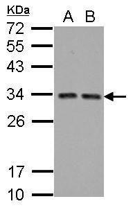 TIP30 Antibody (PA5-27109) in Western Blot