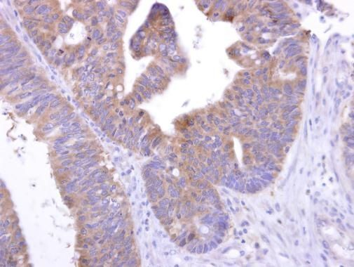 GPR82 Antibody (PA5-27122) in Immunohistochemistry