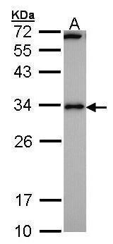 RCAN1 Antibody (PA5-27132) in Western Blot