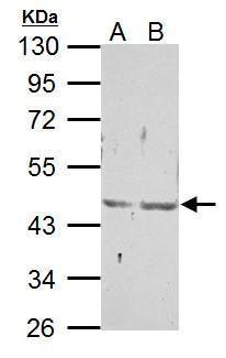 EAR2 Antibody (PA5-27135) in Western Blot