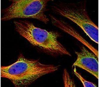 ACSL4 Antibody (PA5-27137) in Immunofluorescence