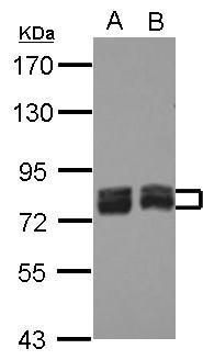 ACSL4 Antibody (PA5-27137) in Western Blot