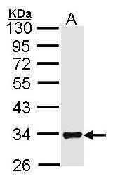 FHL1 Antibody (PA5-27141)