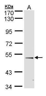 FOXD1 Antibody (PA5-27142) in Western Blot