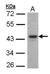 FOXE1 Antibody (PA5-27143)