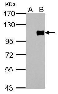FOXM1 Antibody (PA5-27144) in Western Blot