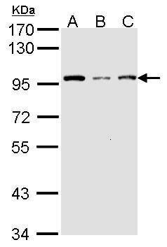 GCN5 Antibody (PA5-27146) in Western Blot