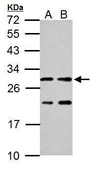 ERAB Antibody (PA5-27155) in Western Blot