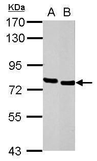 HCLS1 Antibody (PA5-27156) in Western Blot