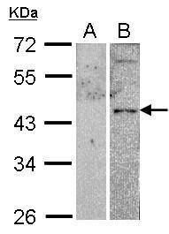 VIPR2 Antibody (PA5-27162)
