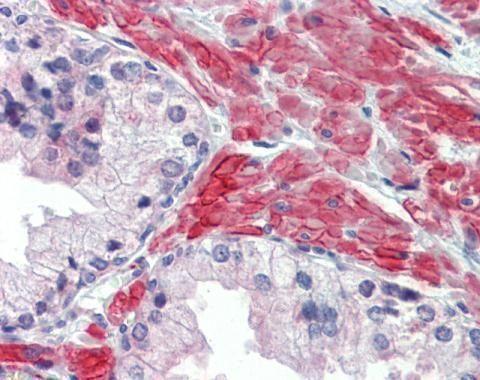 HTR2C Antibody (PA5-27164) in Immunohistochemistry (Paraffin)