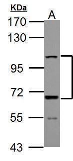 ADAMTS5 Antibody (PA5-27165) in Western Blot
