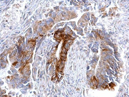CCR3 Antibody (PA5-27168) in Immunohistochemistry (Paraffin)