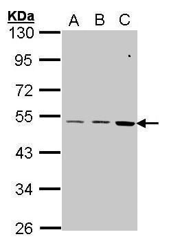 CCKBR Antibody (PA5-27169) in Western Blot