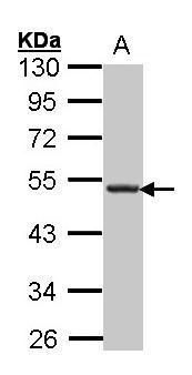 CXCR5 Antibody (PA5-27170) in Western Blot