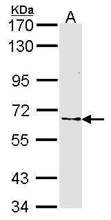 FZD10 Antibody (PA5-27174) in Western Blot
