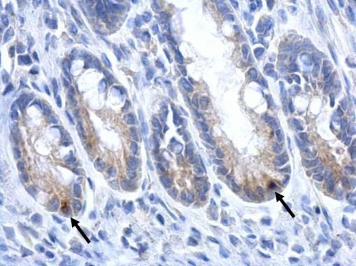 LGR5 Antibody (PA5-27178) in Immunohistochemistry (Paraffin)