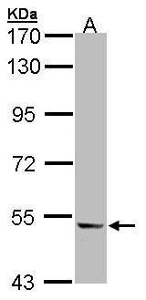 ICAM-1 Antibody (PA5-27189) in Western Blot