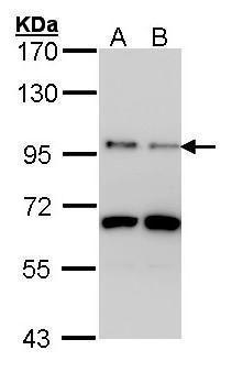 MMP9 Antibody (PA5-27191) in Western Blot