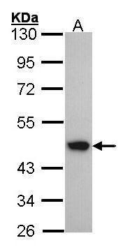 ACADM Antibody (PA5-27200) in Western Blot