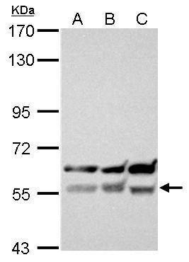XIAP Antibody (PA5-27203) in Western Blot