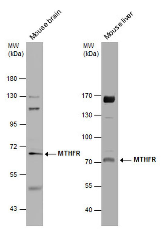 MTHFR Antibody (PA5-27211) in Western Blot