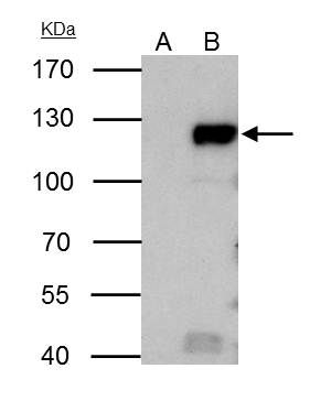 Rb Antibody (PA5-27215) in Immunoprecipitation