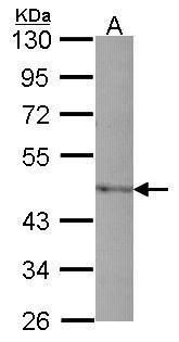 PAI1 Antibody (PA5-27216) in Western Blot