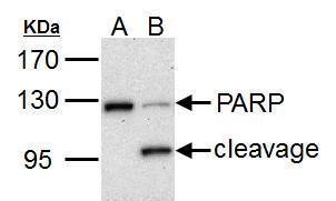 PARP Antibody (PA5-27219) in Western Blot
